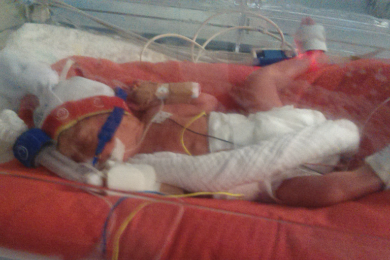 Baby Alexis in hospital, in ICU